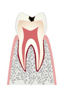 初期のむし歯